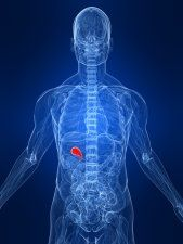 Holistically and Naturally Treating Gallstones, Gallbladder Attacks, and What You Can Do About Them Without Getting Butchered by a Surgeon