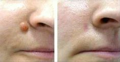 Como eliminar verrugas usando apenas 1 ingrediente | Cura pela Natureza