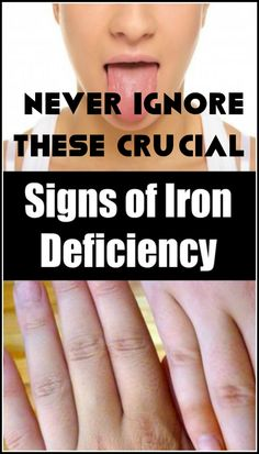 Iron deficiency in our frame can reason serious ailments as its far an vital nutrient that our body desires. Every person calls for an adequ Signs Of Iron Deficiency, Iron Deficiency Symptoms, Excessive Hair Fall, Physical Condition, Body Organs, Lol, Health Advice, Health Care, Our Body