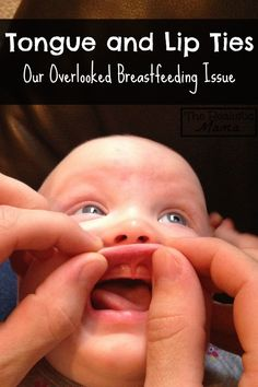 TONGUE TIE - tongue and lip ties are a huge overlooked BREASTFEEDING ISSUE. Here's what you need to know.