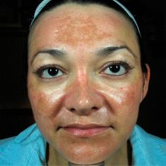 1000 images about skin healing melasma on pinterest melasma treatment dark spots and turmeric. Black Bedroom Furniture Sets. Home Design Ideas