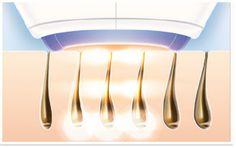 DAUERHAFTE Haarentfernung ipl-Philips Lumea - IPL Haarentfernung Philips Lumea Verwendung_2