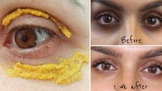 61872016_she-try-to-apply-turmeric-mask-on-her-dark-circles-around-the-eyes-10-minutes-laster-she-see-results-1