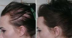 Saç Dökülmesini Hayatınızdan Komple Çıkaran Bu Tarifi Mutlaka Denemelisiniz 25 Hair Loss, Hair Growth, Hair Care, Health, Lima, Women, Strong Hair, Hair Falling Out, Immune System