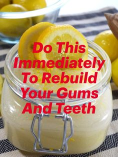 Teeth Health, Healthy Teeth, Health Diet, Health Fitness, Happy Healthy, Healthy Beauty, Health And Beauty Tips, Natural Medicine, Herbal Medicine