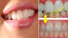 Cum sa elimini placa dentara in mod natural - Sanatate de fier