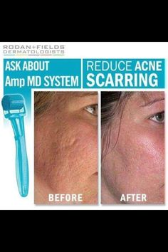 Amp up your skin care with Rodan & Fields Amp MD. http://inez.myrandf.com/