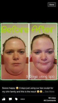 Double chin. Be gone ! With lipo lotion and wraps!