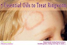 Treating Ringworm, Get Rid Of Ringworm, Essential Oils For Ringworm, Essential Oils For Babies, Rachel Brosnahan, Yl Oils, Doterra Essential Oils, Oregano Oil Benefits