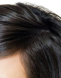 Adult Women's Hair Loss Treatment Promote New Growth Hair