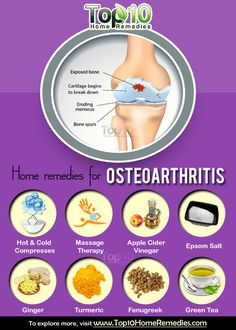 Osteoarthritis, also known as degenerative joint disease or osteoarthrosis, is the most common form of arthritis. It occurs due to the breakdown of cartilage in joints, which causes the bones to rub against each other. According to Centers for Disease Control and Prevention, about 27 million people in America have osteoarthritis. It usually develops between …