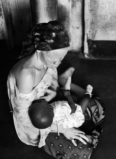 """The bond between mother and child is absolute in this tender moment when breastfeeding. Nothing else is relevant, neither skin color, nor the fact that the mother is albino and her baby is black. From Rozarii Lynch's """"Life in Peril: Tanzanian Albino People"""""""