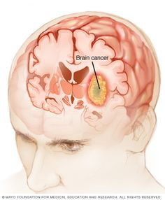 Brain cancer is a very serious type of malignancy that occurs when there is an uncontrolled growth of cancer cells in the brain. Brain cancer is caused by a malignant brain tumor. Not all brain tumors are malignant (cancerous).