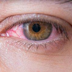 Sie ist hochansteckend, schmerzhaft und im schlimmsten Fall kostet sie euch die Sehkraft. Wir erklären, welche Symptome für eine Augengrippe sprechen und wie ihr euch davor schützt.