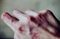"""""""My hands. It doesn't hurt as bad once you get used to it."""""""