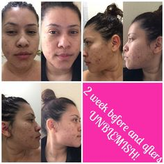 You don't have to love with acne and post acne.  Rodan + Fields has a solution for that!