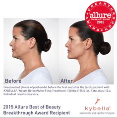 Get rid of your stubborn double chin with Kybella