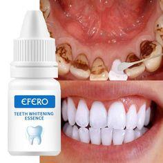 Natural Teeth Whitening, Whitening Kit, Veneers Teeth, Remover Manchas, Anti Aging, Teeth Health, Oral Health, Gut Health, Health Fitness