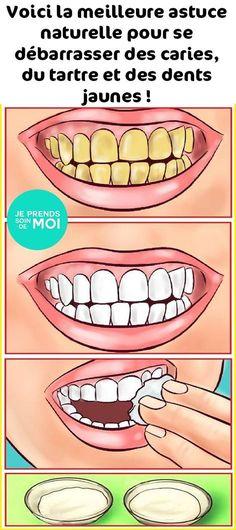 Voici la meilleure astuce naturelle pour se débarrasser des caries, du tartre et des dents jaunes !