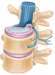 Herniated Disc: About back pain and how to treatit.  Low back pain with pain radiating into the legs is one of the most common injuries in the United States