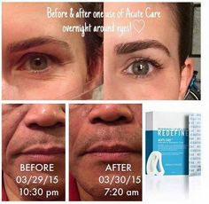 WARNING-PREPARE YOURSELF FOR AMAZING RESULTS REDEFINE ACUTE CARE uses hyaluronic acid and peptides to visibly reduce expression lines. Message me TODAY to get started. #acutecare #rodanandfields www.keepcalmandloveyourskin.com