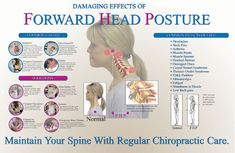 chiropractic biophysics - Google Search