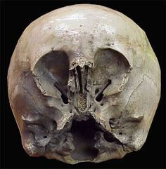 The Starchild Skull   DNA proves it is not entirely human