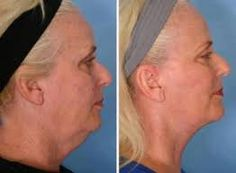 Neck results after 1 wrap #itworks