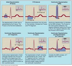 P.A.C.s and the heart and extra p wave - Google Search
