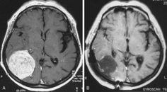 Beyin tümörlerinin belirtileri ve tedavisi hakkında bilgi veren Prof. Dr. Hakan Oruçkaptan, aniden ortaya çıkan görme kaybı, yürüme problemleri, geçmeyen baş ağrısı, bulantı ve kusma gibi yakınmalar beyin tümörünün habercisi olabilir, dedi