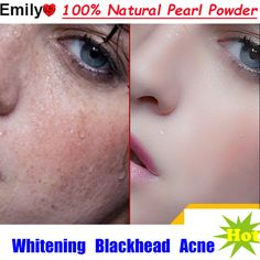 Natural Instantly Ageless Medicinal Pearl Mask Powder,Remove Scar Blemish Whitening, Acne Treatment, Anti Aging Wrinkle Can Eate Spots On Face, Acne Treatment, Whitening, Anti Aging, Skin Care, Discount Price, Hacks, Free Shipping, Food