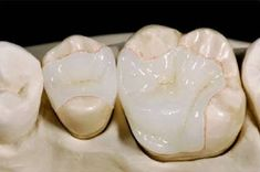 They are different from crowns because unlike them Inlays/Onlays cover only a part of the tooth, and require far less tooth preparation.