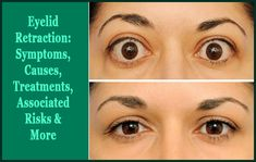 Learn everything about eyelid retraction including its causes, symptoms, treatments and more. Best treatment you can try is the eyelid retraction surgery. Dry Eyelids, Eyelid Lift, Skin Grafting, Eyelid Surgery, Botox Injections, Thyroid Disease, Eye Drops, Trauma, Eyes