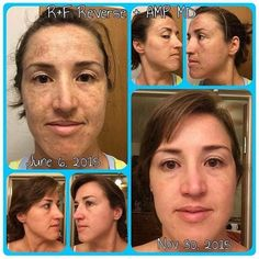 """I LOVE THESE RESULTS SO MUCH I HAVE TO KEEP POSTING IT Anyone that has sun damage or Melasma/Cholasma this one is for you.  The #AmpMD roller paired with our #Reverse regimen can work wonders! """"After 30 years of living an outdoor lifestyle in Cali the damage to my skin was intense. Add on two pregnancies and the brown spots and damage were bad. I tried other products both low cost and very expensive but with little or no change. I figured this was the skin I was stuck with. Until one day I…"""