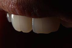 #dentistry #mypassion