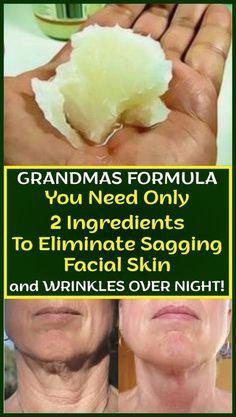 Grandmas Formula You Need Only 2 Ingredients To Eliminate Sagging Facial Skin And Wrinkles Over Night! – Healthy Helps Grandmas Formulag You Need Only 2 Ingredients To Eliminate Sagging Facial Skin And Wrinkles Over Night! Beauty Care, Beauty Skin, Beauty Hacks, Diy Beauty, Beauty Ideas, Homemade Beauty, Beauty Guide, Face Beauty, Beauty Secrets