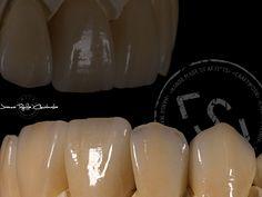 korony całoceramiczne jak naturalne zęby