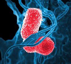 A role for siderophores in Klebsiella pneumoniae pathogenesis