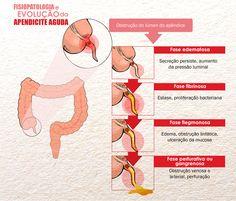 Fisiologia e Evolução da Apendicite Aguda
