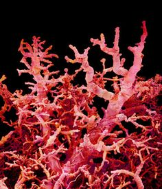 A scanning electron micrograph of blood vessels in a lung.