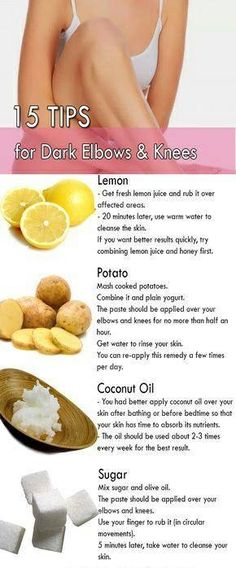 are Natural Home Remedies for Dark Elbows and Knees?What are Dark Elbows an What are Natural Home Remedies for Dark Elbows and Knees?What are Dark Elbows anWhat are Natural Home Remedies for Dark Elbows and Knees?What are Dark Elbows an Beauty Tips For Glowing Skin, Health And Beauty Tips, Beauty Skin, Dark Beauty, Beauty Makeup, Skin Tips, Skin Care Tips, Dark Elbows, Beauty Hacks For Teens
