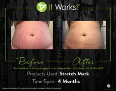 Wow! Look at those results. It's amazing how 4 months made such a difference. I know this momma can't wait to try it out www Pdaniels.myitworks.com