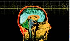 The brain… it makes you think. Doesn't it?  #neuroscience