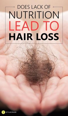 Does Lack Of Nutrition Lead To Hair Loss: One can prevent hair fall by eating healthy food. Let us explore how nutrition and hair fall are indissolubly related with each other.  Hair| Healthy Hair| Hair care| Hair care tips| DIY Hair care|| #haircare #haircaretips #healthyhairtips #healthyhair #ArganOilForHairLoss Best Hair Loss Shampoo, Biotin For Hair Loss, Oil For Hair Loss, Hair Growth Shampoo, Biotin Hair, Keratin Hair, Baby Hair Loss, Hair Loss Cure, Hair Loss Remedies