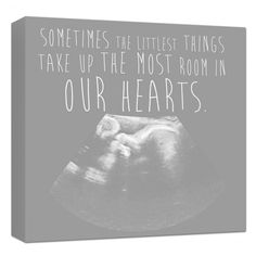 Ultrasound photo on canvas perfect for the new parent holiday ultrasound artwork sonogram canvas nursery art personalized holiday gift for dad negle Images