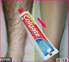 In this video I will share with you how to remove unwanted facial hair with toothpaste. Toothpaste is not only used for your teeth and cleaning silver. Natural Hair Removal, Hair Removal Diy, Natural Hair Styles, Remove Unwanted Facial Hair, Unwanted Hair, Facial Treatment, Skin Treatments, Fitness Workouts, Colgate Toothpaste