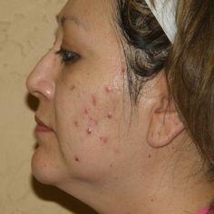 acne adult menopause