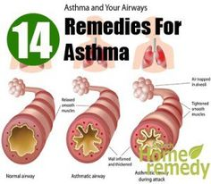 14 Home Remedies For Asthma