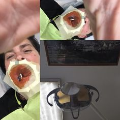 Dentist root canal tooth ache from hell #dentist #toothache #rootcanal #pain #rotfyllning #moneymoneymoney  #readmyblog #enkampomattandas #blogbook by solen68 Our Root Canals Page: http://www.myimagedental.com/services/general-dentistry/root-canals/ Other General Dentistry services we offer: http://www.myimagedental.com/services/general-dentistry/ Google My Business: https://plus.google.com/ImageDentalStockton/about Our Yelp Page: http://www.yelp.com/biz/image-dental-stockton-3 Our Facebook…