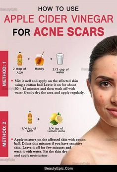 How to Remove Acne Scars Quickly with Apple Cider Vinegar? how to use apple cider vinegar for acne scars Vinegar For Acne, Apple Cider Vinegar For Skin, Acv For Acne, Apple Cider Vinegar Benefits, Apple Cider For Acne, Honey For Acne Scars, Apple Cider Vinegar Remedies, Apple Benefits, Skin Treatments